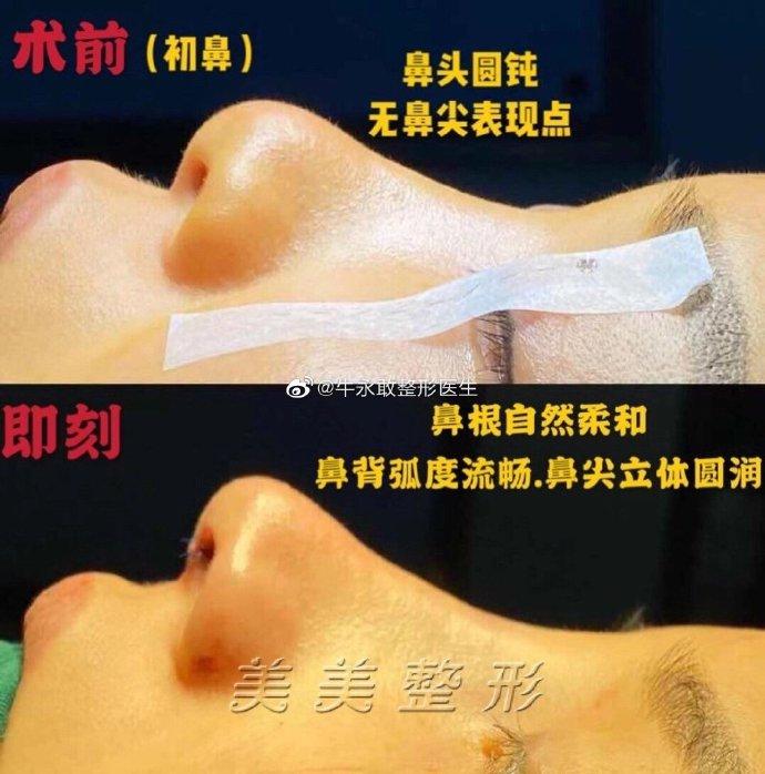 鄭州最出名的鼻整形醫生是哪個?鄭州隆鼻專家前十名排行榜