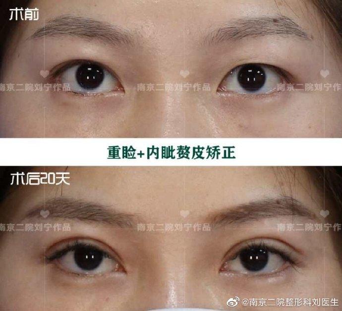 南京劉寧和劉育鳳誰做的雙眼皮技術好?