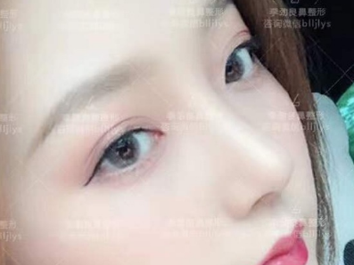 北京曾高和李劲良谁做的鼻子好?李劲良曾高隆鼻技术谁更好?