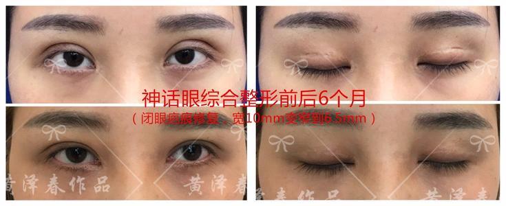 黄泽春修复双眼皮案例