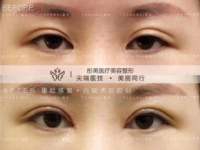 刘风卓修复双眼皮案例