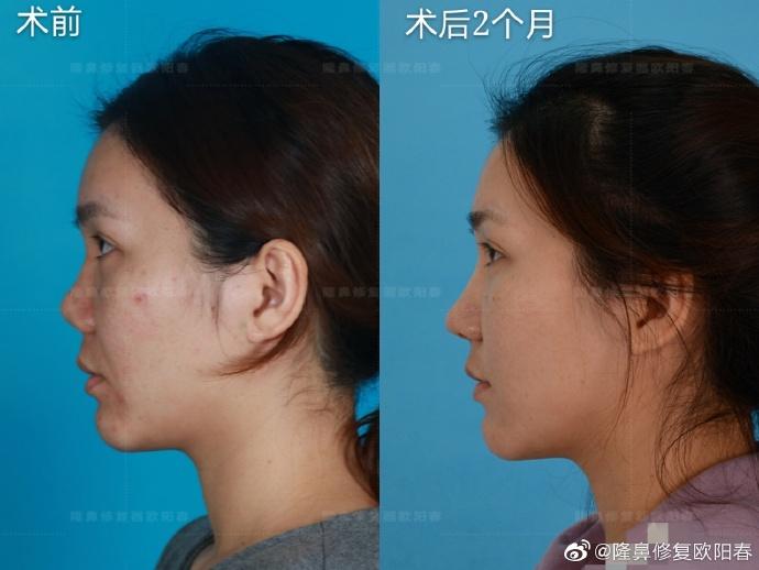 欧阳春鼻修复案例