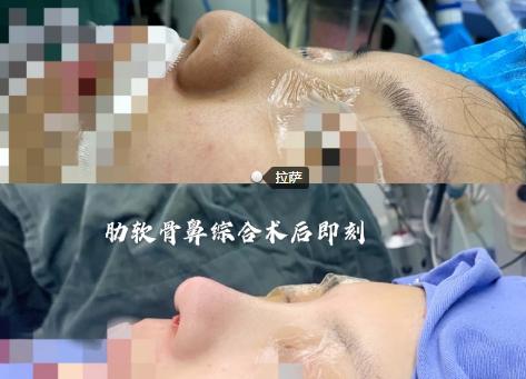 北京八大处做鼻修复的医生哪个好?八大处最好的鼻修复医生