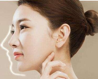 广州做隆鼻修复最好的医生是谁?广州鼻修复专家前十名