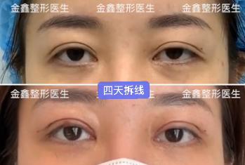 深圳有哪些做双眼皮修复的医生预约排名大全