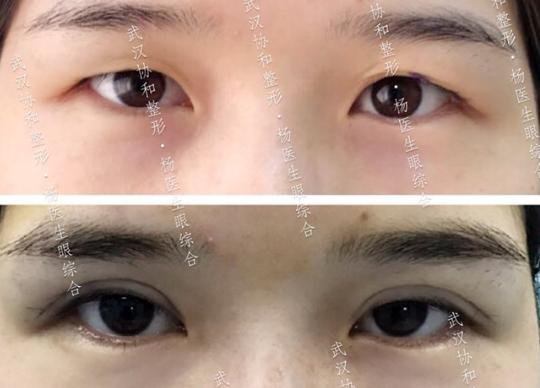杨杰割双眼皮案例