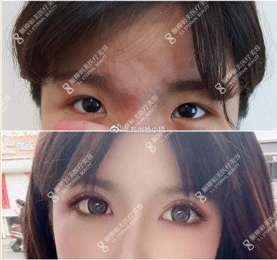 杨小顺割双眼皮案例
