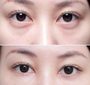 金国华和王海平哪个修复眼袋更好?王海平金国华谁技术好?