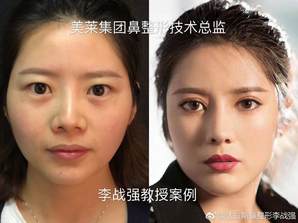 李战强鼻子修复案例