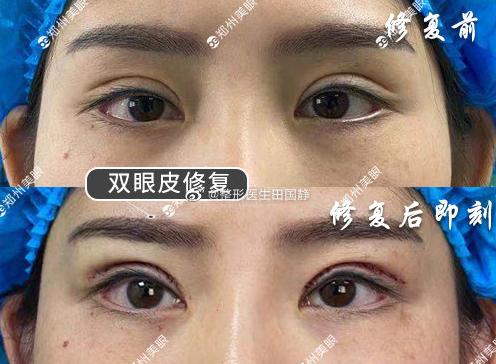田国静双眼皮修复案例