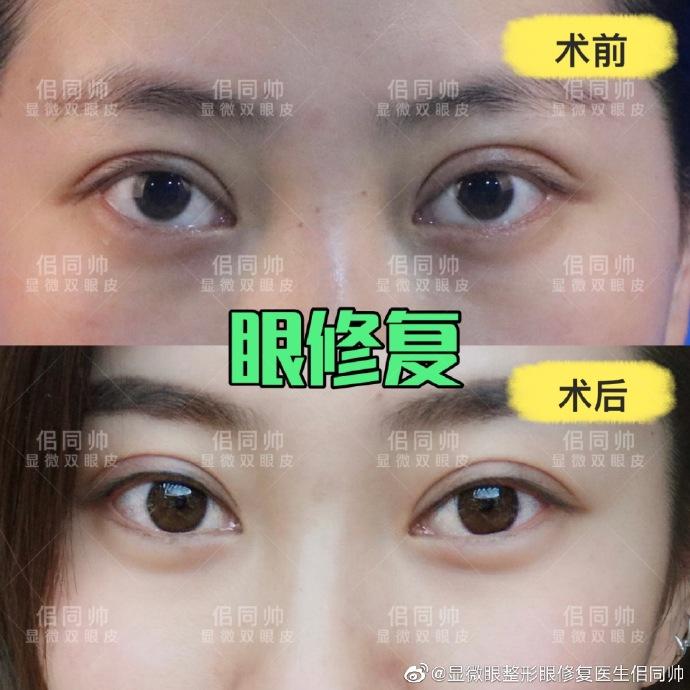 上海哪个医生双眼皮修复技术好?唐毅佀同帅周兆平沈国雄张余光谁好