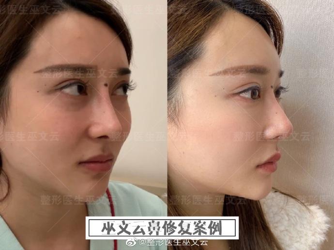 巫文云修复鼻子案例