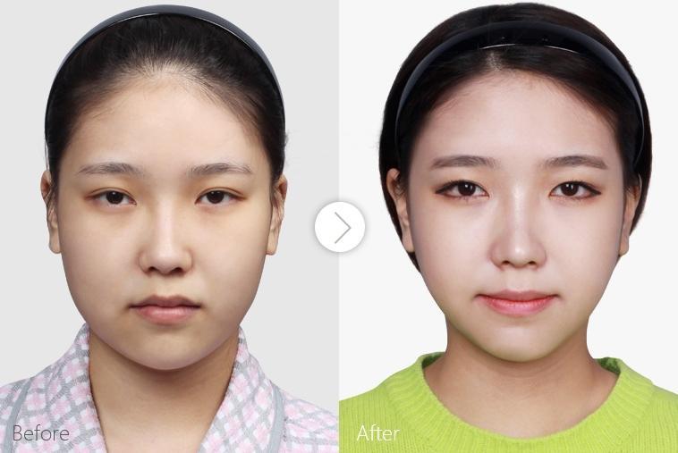 中国做下颌角最好的医生是谁?国内磨骨专家预约前十名排名
