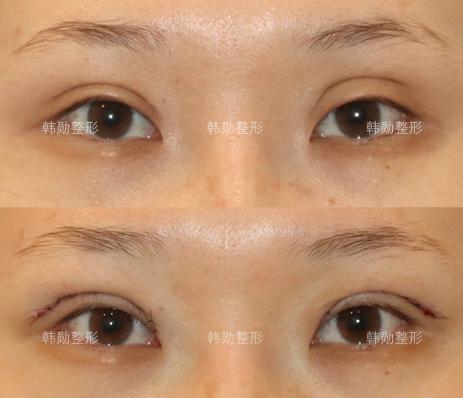 全国最有名的双眼皮修复医生 中国眼修复专家预约排名大全