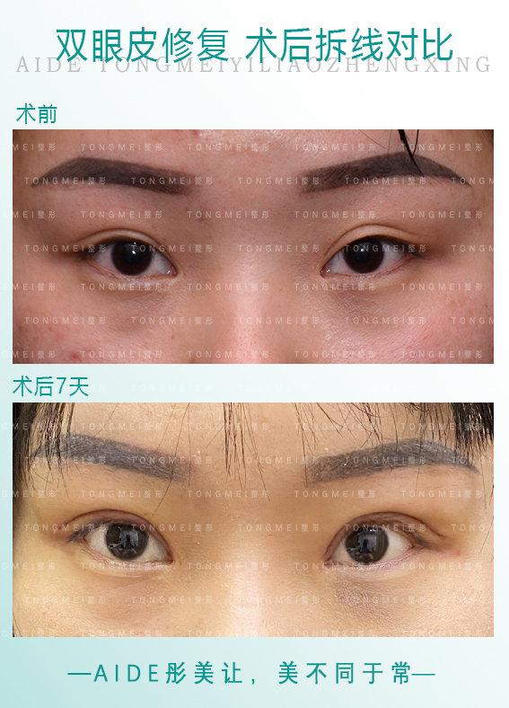 刘风卓眼修复案例