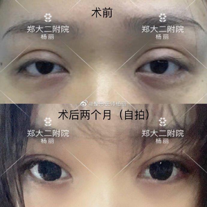 郑州做修复双眼皮好的医生:杨丽田国静孔宇贾亮孟明星谁好?