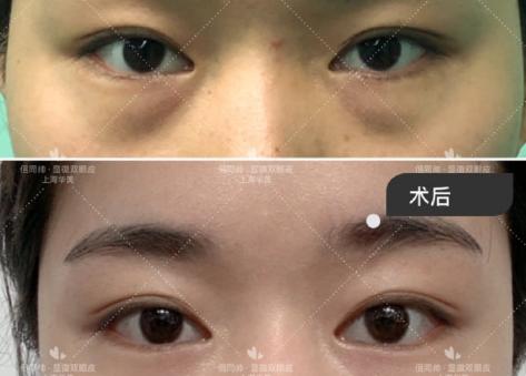上海双眼皮修复医生哪个最好?杨亚益沈国雄朱惠敏佀同帅谁好?