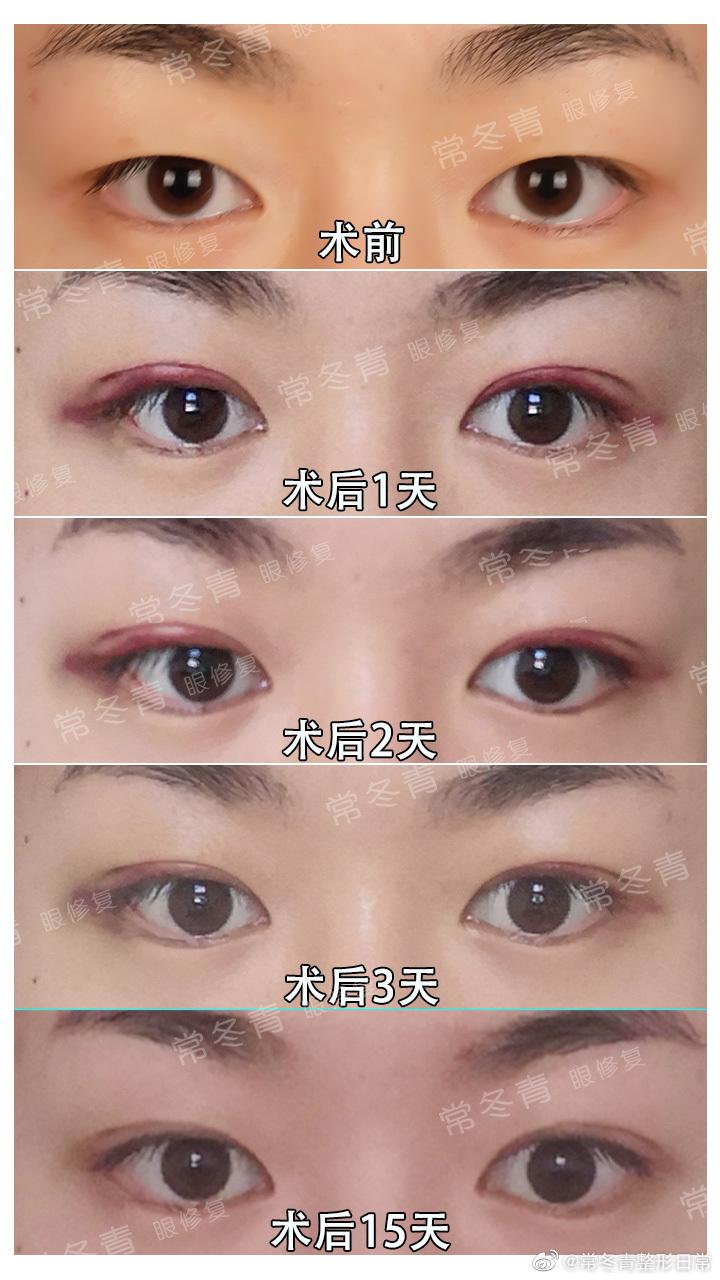 常冬青割双眼皮案例