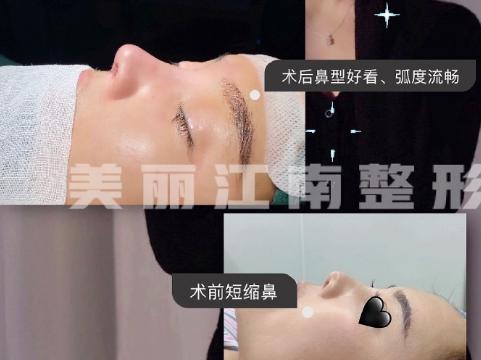 上海美星柴軍醫生做鼻子怎么樣?柴軍隆鼻簡介預約