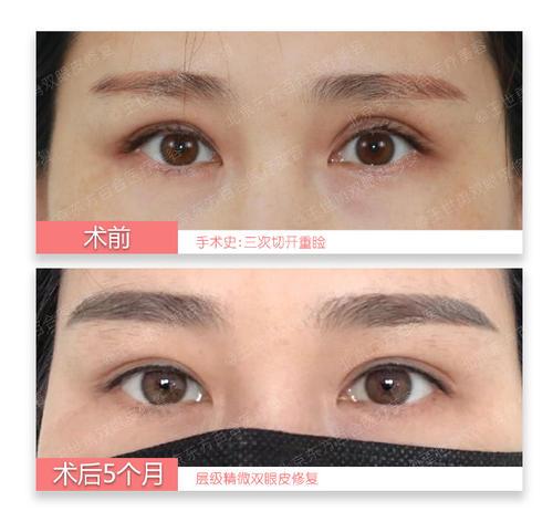 沈阳哪个整形医生双眼皮修复做得好?