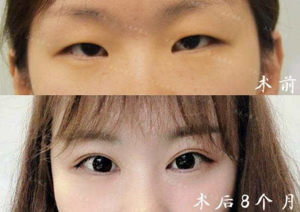 王太玲做双眼皮案例