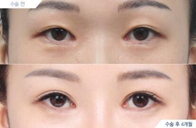 任晓霞双眼皮修复案例