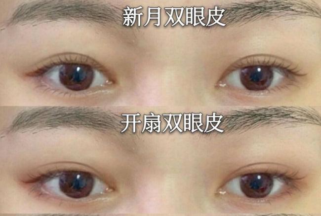 昆明做双眼皮最好的专家是谁?昆明双眼皮医生预约排名