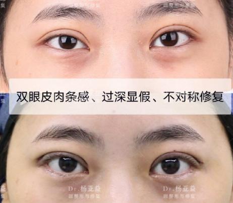 上海哪个医生双眼皮修复比较好?上海眼修复前十名预约排名