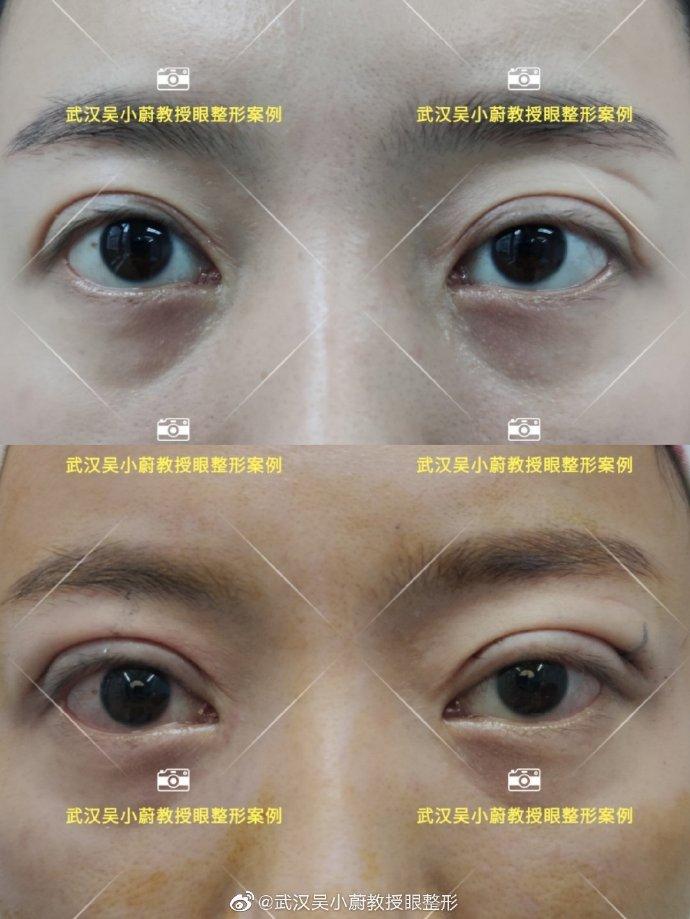 吴小蔚做双眼皮修复案例