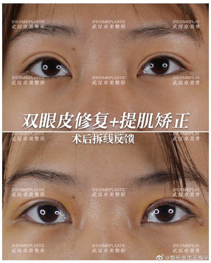 王海平做双眼皮修复案例