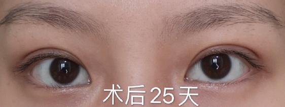 西安最好的双眼皮医生排名最新推荐 西安做双眼皮专家预约排行榜