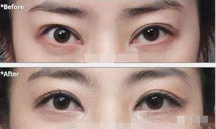 北京双眼皮修复专家名单都有谁?北京眼修复医生排名大全
