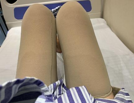 北京大腿吸脂好的医生权威专家推荐 北京吸脂医生排名
