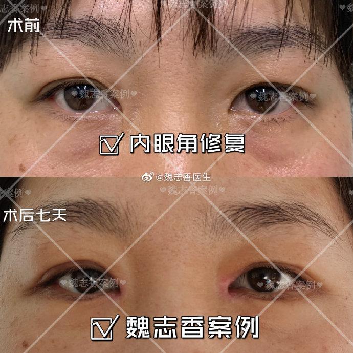 魏志香内眼角修复案例