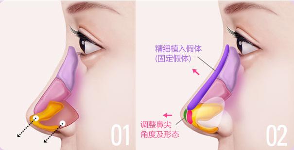 杭州鼻修復哪個醫生好?李保鍇、張龍、徐利剛、汪云鋒誰好?