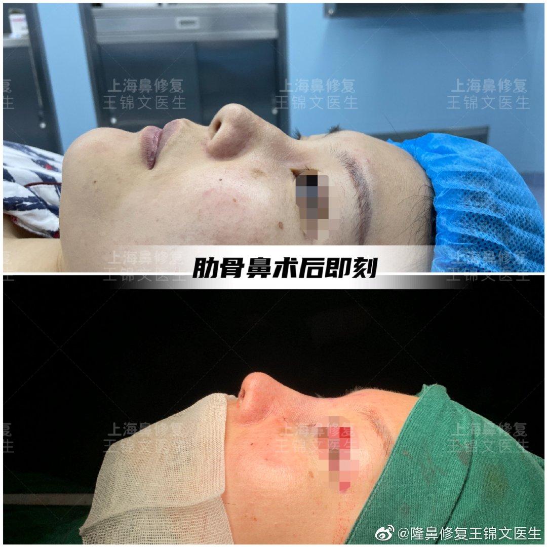 王锦文做鼻子案例