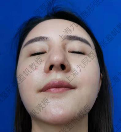 张盈帆做鼻修复案例