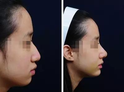 全国最好的修复鼻子的医生排名榜预约