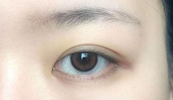 合肥双眼皮修复方面的专家医生谁最好?