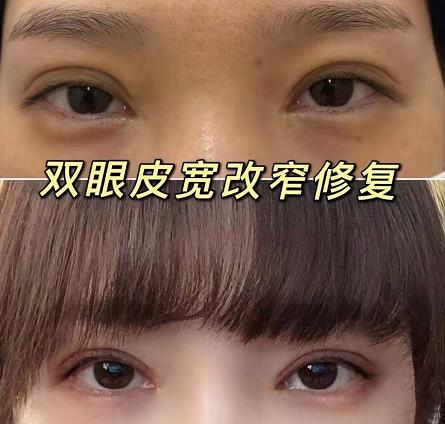 長沙雙眼皮修復哪個醫生做的比較好?長沙眼修復專家排名