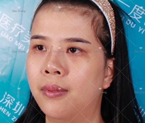 张干林做面部吸脂案例