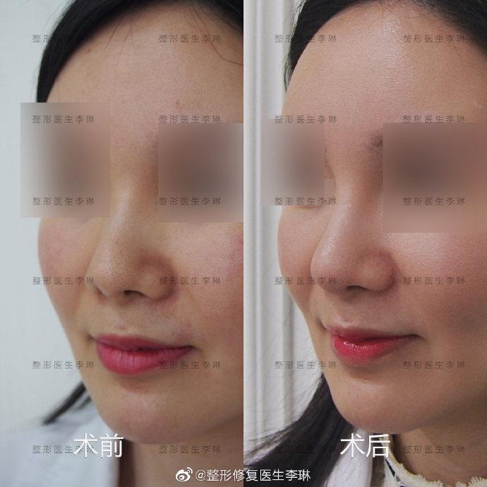 李琳鼻修复案例1