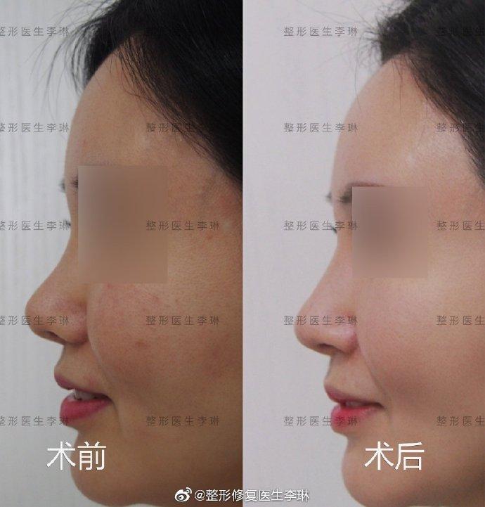李琳鼻修复案例