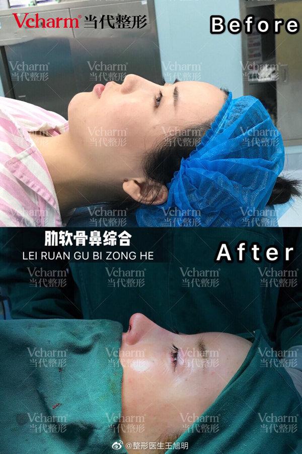王旭明做鼻子案例