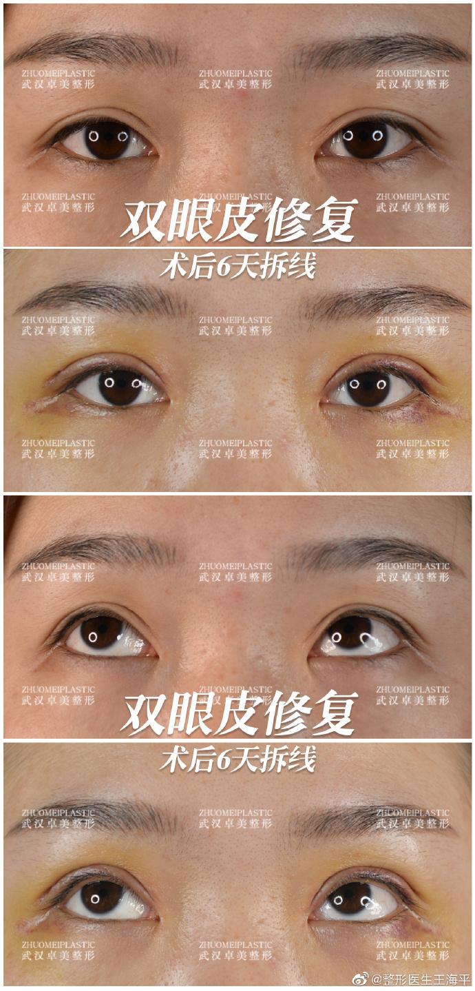 王海平修复眼睛案例