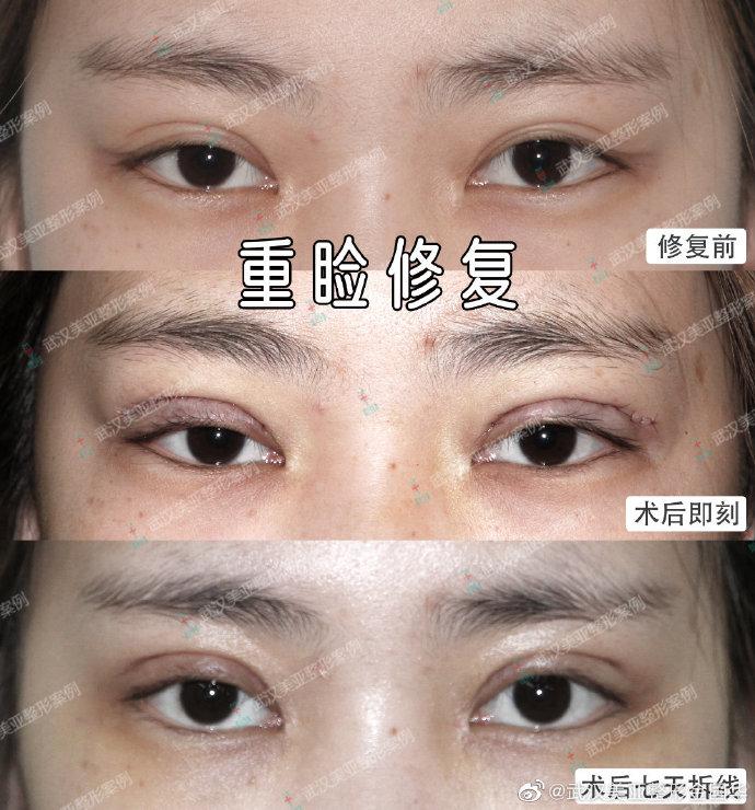 金国华修复眼睛案例