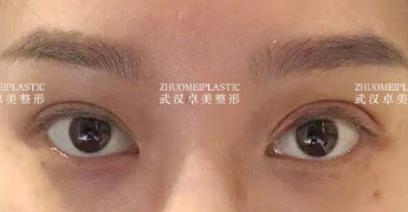 王海平和金國華哪個修復眼睛好?金國華王海平雙眼皮修復誰好?