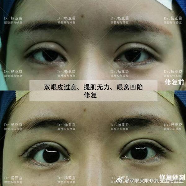杨亚益割双眼皮案例