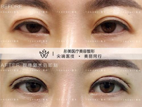 中国的眼部修复最好的专家是哪个?