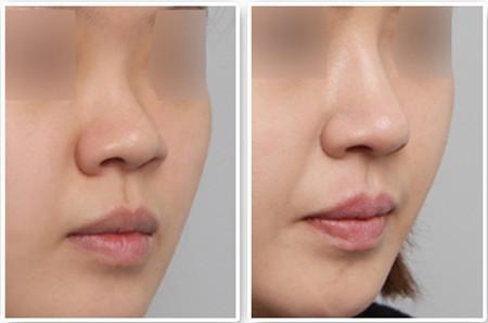 中国隆鼻比较出名的医生是谁?中国知名隆鼻专家排名